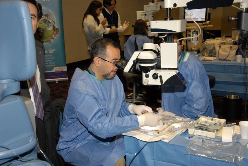 Chilean corneal specialists practicing DSEK surgery using microscopes provided by Alcon surgical and instruments provided by Moria surgical.