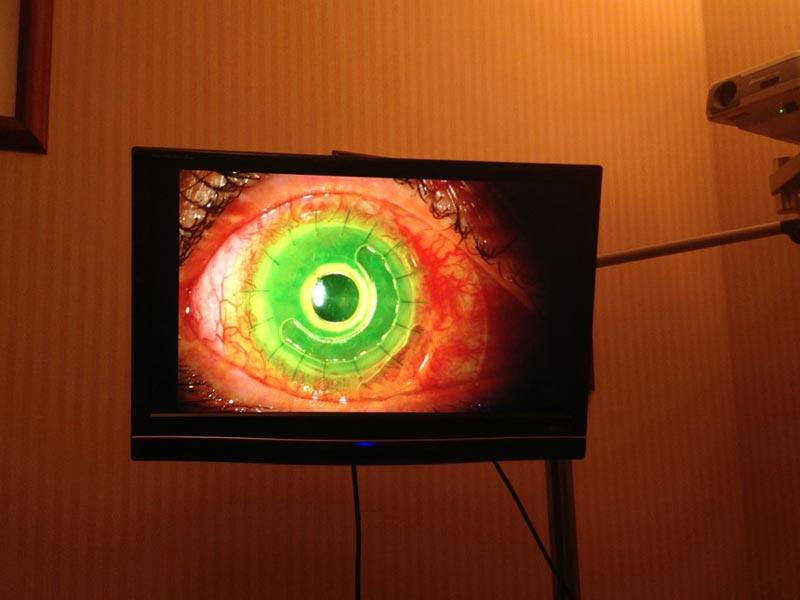 Video display of Boston keratoprosthesis 1 day after implantation.  The patient's vision measured 20/40